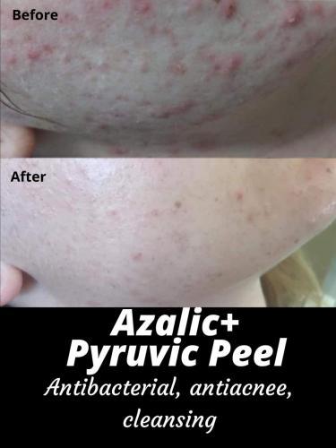 Azalic+ Pyruvic Peel (1)