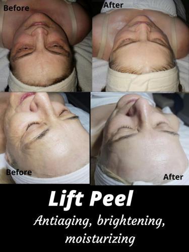 lift peel (6)